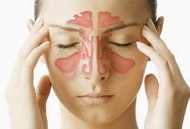 Penyakit sinusitis